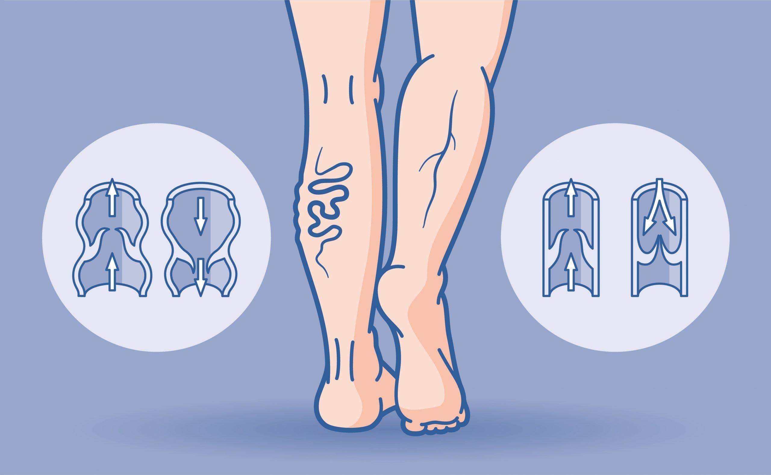 Wer bekommt Krampfadern? Die Illustration zeigt einen Gegenüberstellung eines gesundes und eines kranken Beines mit Krampfadern. Medizinische Illustration: Jan Langela (www.janlangela.de)